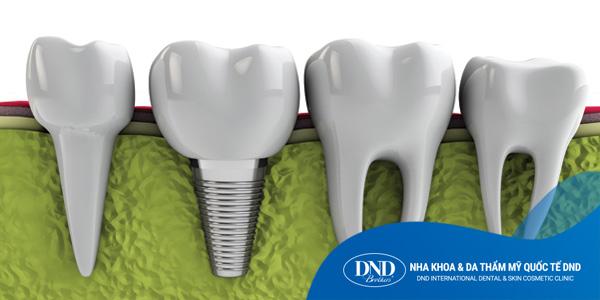 Cấy Ghép Răng Implant - Nha khoa Quốc tế DND