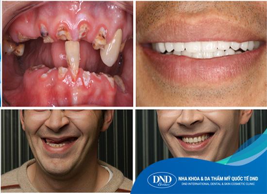 Cấy ghép Implant All on 4 - Nha khoa Quốc tế DND