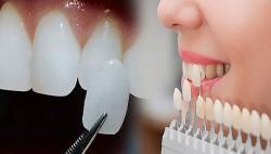 Dịch vụ Bọc răng sứ thẩm mỹ - Nha khoa Quốc tế DND