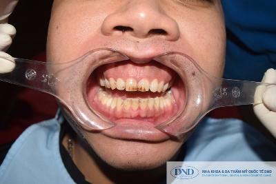 Dịch vụ Cạo vôi đánh bóng răng - Nha khoa Quốc tế DND