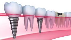 Dịch vụ cấy ghép Implant - Nha khoa quốc tế DND