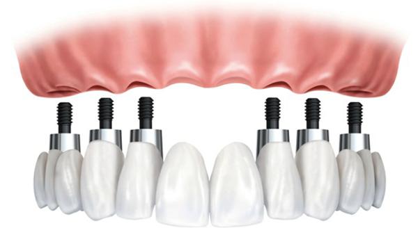 Dịch vụ cấy ghép răng implant all on 4 - Nha khoa Quốc tế DND