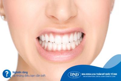 Dịch vụ Điều trị nghiến răng - Nha khoa Quốc tế DND