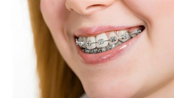 Dịch vụ Niềng răng mắc cài kim loại - Nha khoa Quốc tế DND