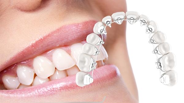 Dịch vụ Niềng răng mắc cài mặt lưỡi - Nha khoa Quốc tế DND
