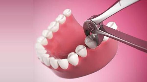 Dịch vụ nhổ răng sữa cho trẻ - Nha khoa Quốc tế DND