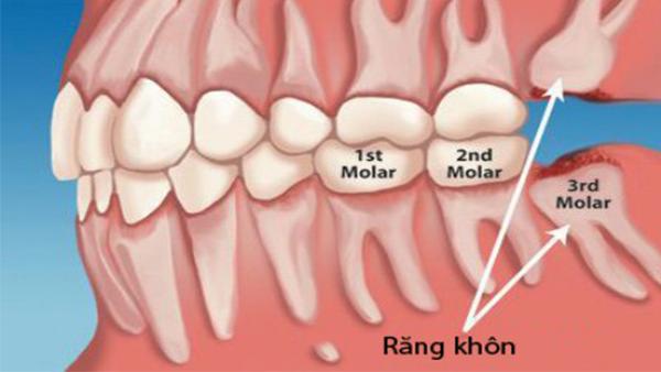 Dịch vụ nhổ răng khôn - Nha khoa Quốc tế DND