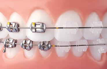 Dịch vụ Niềng răng mắc cài sứ - Nha khoa Quốc tế DND