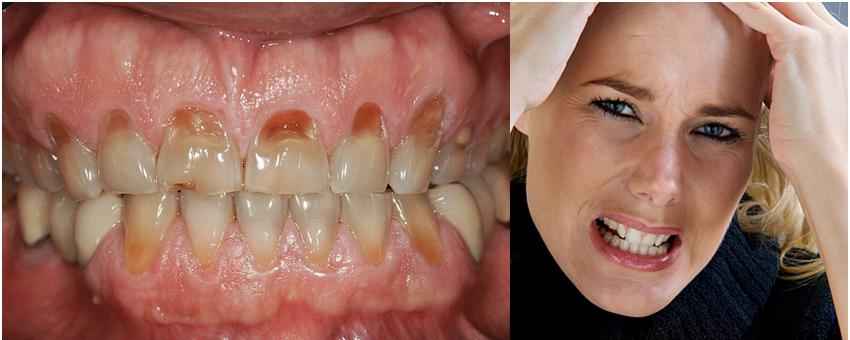 Điều trị nghiến răng - Nha khoa Quốc tế DND