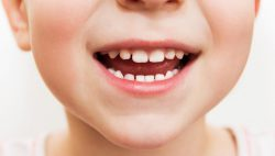 Điều trị sâu răng cho trẻ – Nha Khoa Quốc Tế DND