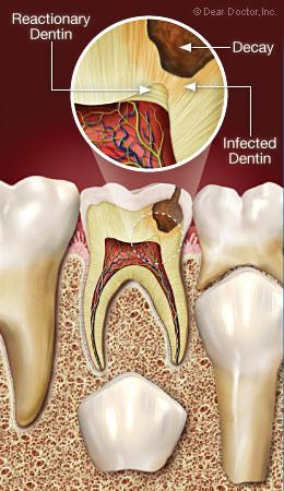 Tủy răng sinh ra ngà phản ứng bảo vệ - Điều trị tủy cho trẻ em - Nha khoa Quốc tế DND