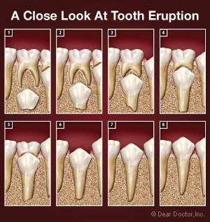 Quá trình thay răng sữa bằng răng vĩnh viễn - Điều trị tủy cho trẻ em - Nha khoa Quốc tế DND