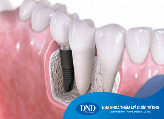 Ghép xương nâng xoang trong Implant - Nha khoa Quốc tế DND