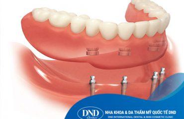 Hàm phủ trên Implant - Nha khoa Quốc tế DND