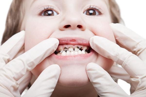 Nhổ răng sữa cho trẻ - Nha khoa Quốc tế DND