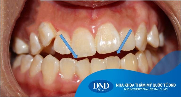 Niềng răng cắn hở tại Nha khoa Quốc tế DND