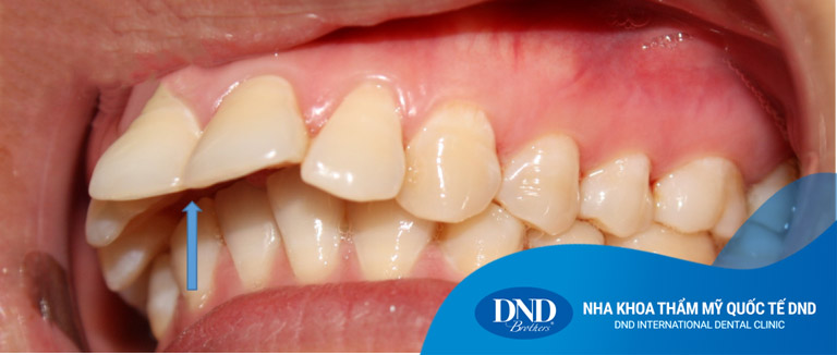 Niềng răng hô móm tại Nha khoa Quốc tế DND