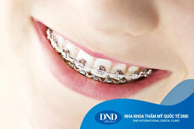 Niềng răng mắc cài kim loại - Nha khoa Quốc tế DND
