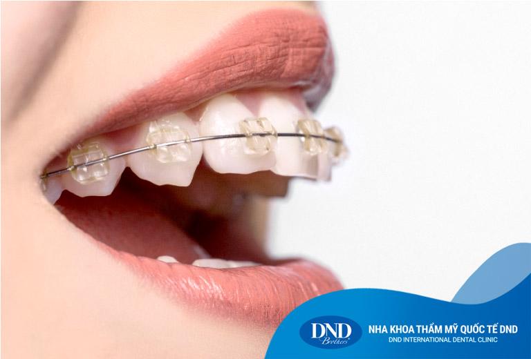 Niềng răng mắc cài sứ – Nha Khoa Quốc Tế DND