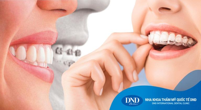 Niềng răng trong suốt Invisalign - Nha khoa Quốc tế DND