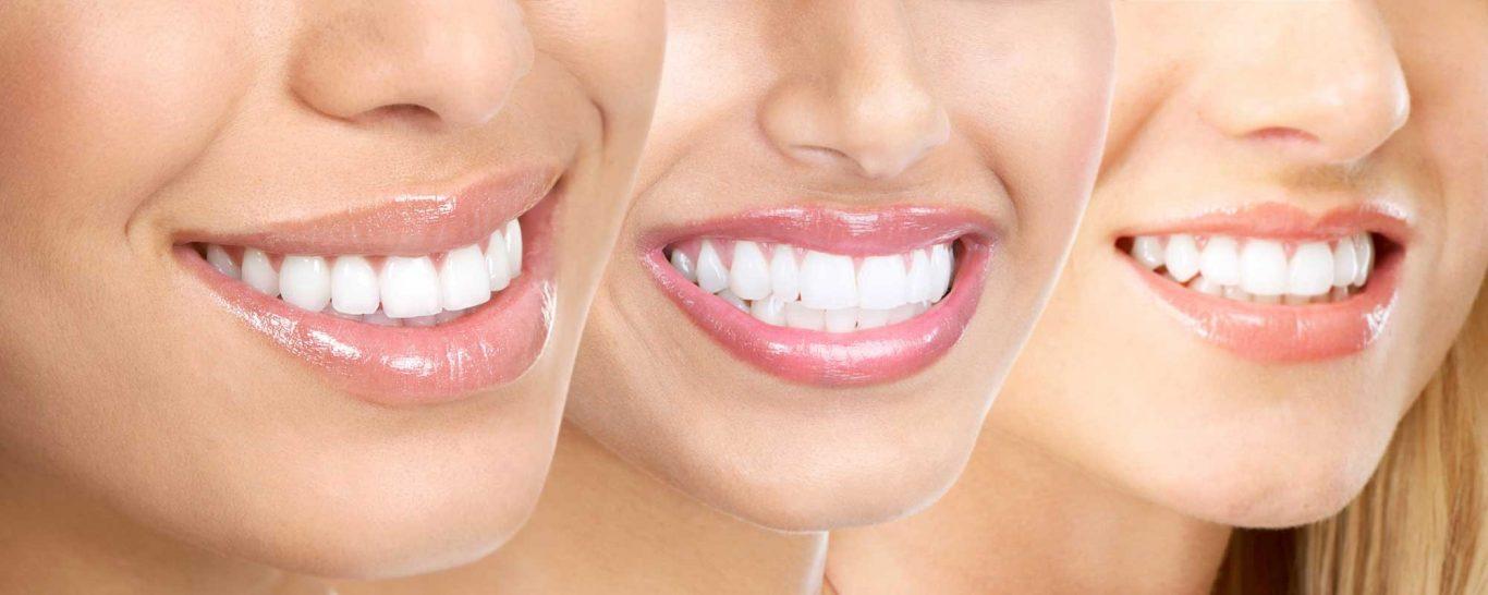 Dịch vụ Niềng răng mắc cài trong suốt Invisalign - Nha khoa Quốc tế DND