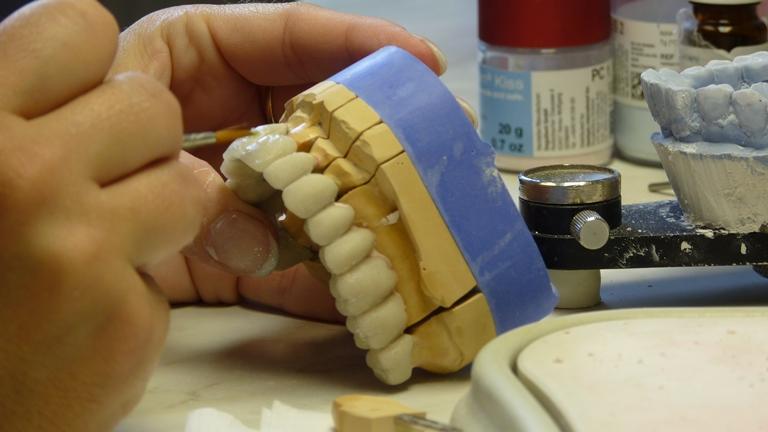 Chế tác răng sứ - Bọc răng sứ thẩm mỹ – Nha Khoa Quốc Tế DND