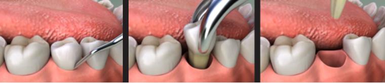 Nhổ răng thường - Nha khoa Quốc tế DND