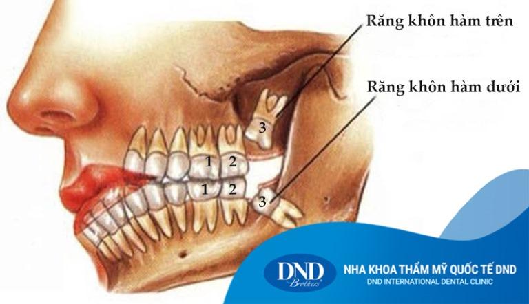 Nhổ răng khôn - Nha khoa Quốc tế DND
