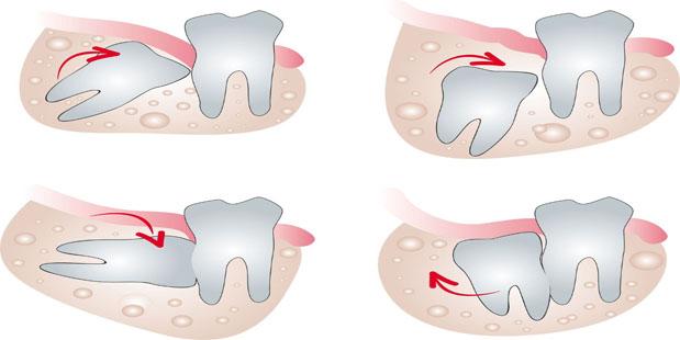 Các trường hợp nên nhổ răng 8
