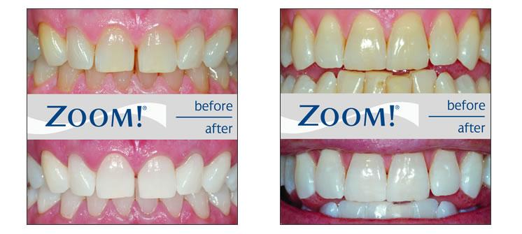 Figure 2: hình ảnh răng trước và sau tẩy trắng với Zoom. Tẩy trắng răng an toàn - Nha khoa Quốc tế DND