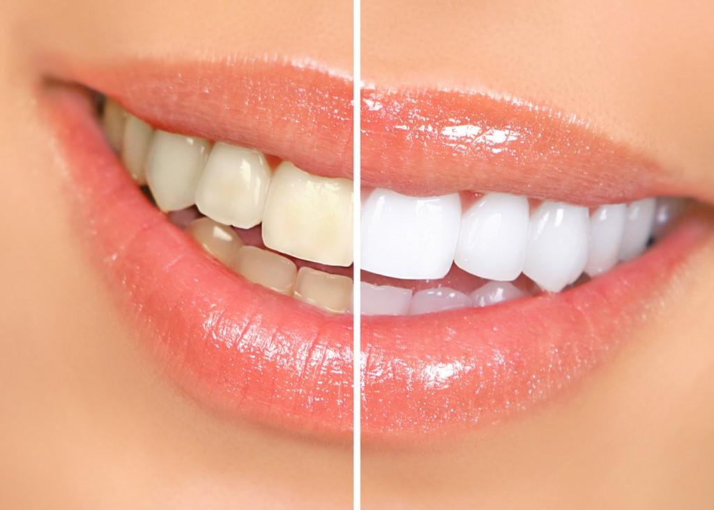 Tẩy trắng răng an toàn - Nha khoa Quốc tế DND