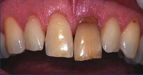 Figure 3: răng đổi màu do hoại tử tủy lâu ngày không được điều trị