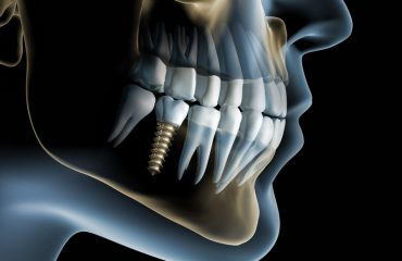 Cấy ghép răng Implant -Nha khoa Quốc tế DND