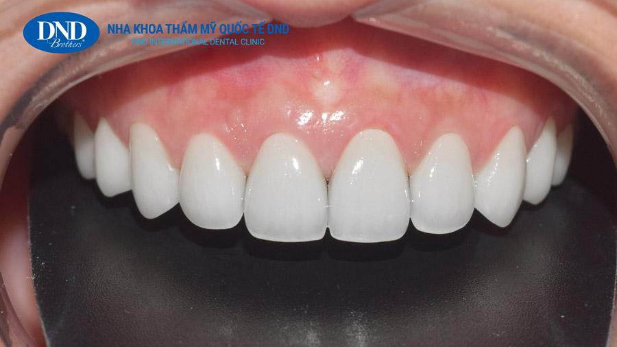 Bọc răng sứ - Nha khoa Quốc tế DND