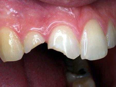 bọc răng sứ mất bao lâu - Ceramic Crown - Nha khoa Quốc tế DND