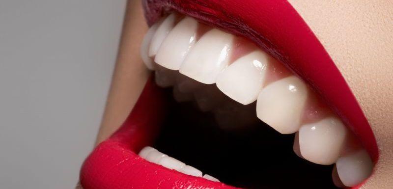 Răng toàn sứ emax nha khoa DND