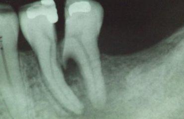 Chữa nứt răng - Nha khoa Quốc tế DND