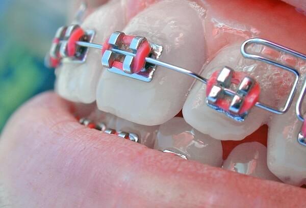 mắc cài tự buộc và mắc cài tiêu chuẩn - self-ligating braces and regular braces - Nha khoa Quốc tế DND