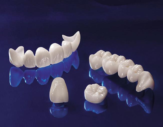 Răng toàn sứ - nha khoa quốc tế DND