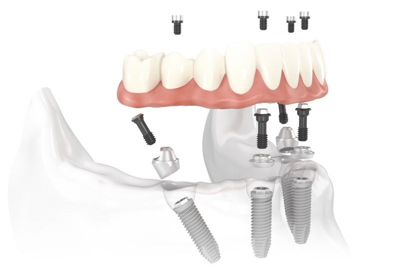 implant-all-on-4-1
