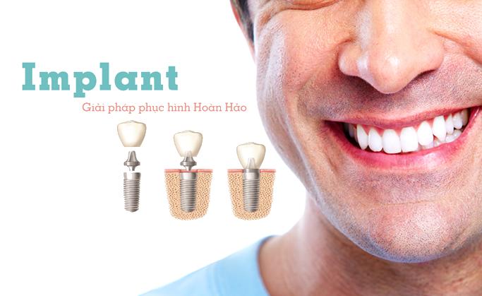 Cấy ghép Implant - Giải pháp phục hình hoàn hảo cho răng đã mất