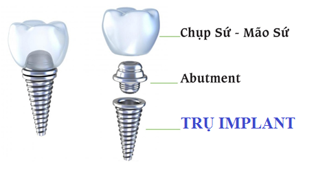 Trụ Implant được cấy vào xương hàm thay thế cho chân răng tự nhiên