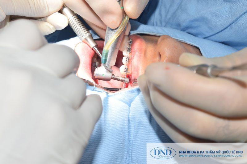 Bác sĩ đặt Implant vào mô lợi