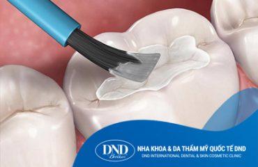 Dịch vụ trám răng - Nha khoa Quốc tế DND
