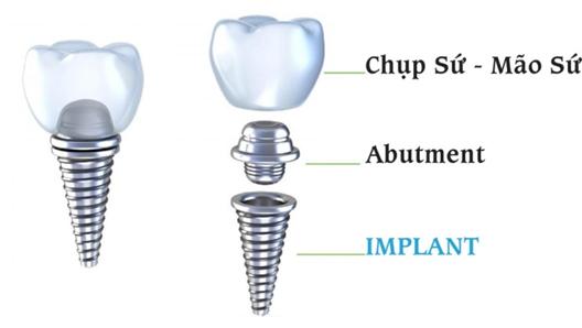 Cấu tạo trụ Implant