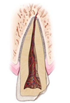 trường-hợp-răng-vỡ-sứt-mẻ