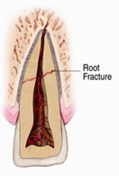 nứt-thân-răng