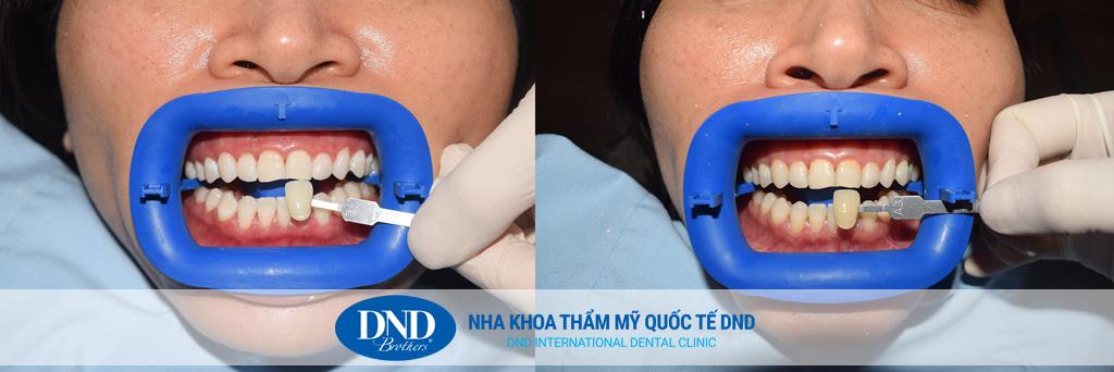 Trước và sau tẩy trắng răng tại Nha khoa Quốc tế DND