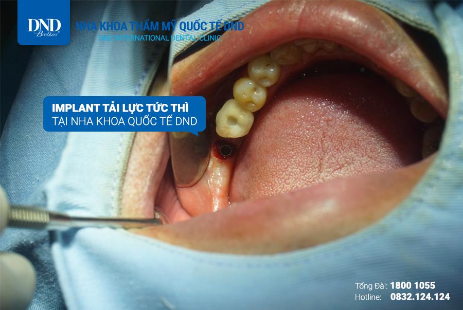 Trồng răng Implant - Nha khoa tải lực tức thì