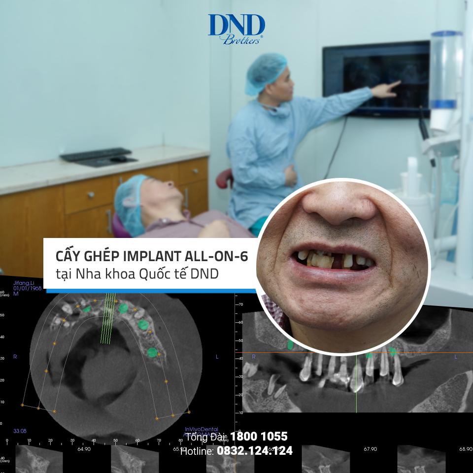 Một ca cấy ghép Implant tại Nha khoa Quốc tế DND